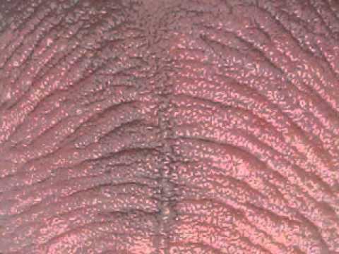 depilazione testicoli