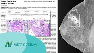 Přežití rakoviny prsu a příjem lignanů