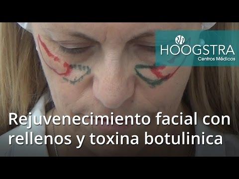 Rejuvenecimiento facial con rellenos con ácido hialurónico y toxina botulínica (16042)