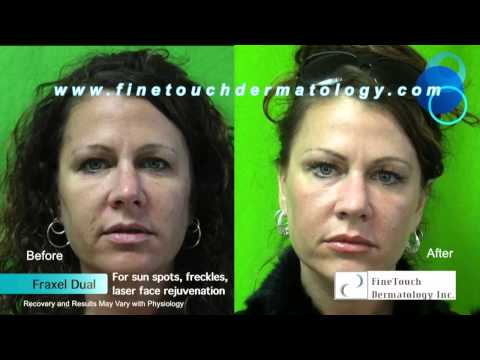 Fraxel DUAL Laser Skin Treatment for Sun Spots: Before and After Results on Manhattan Beach Patient