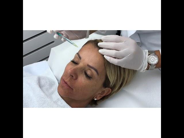 Mesotherapie zum Abnehmen der Wangen