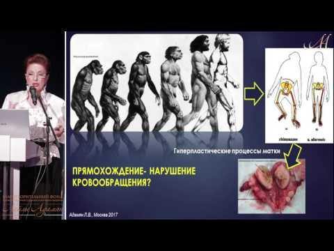 """05 марта 2017 г. Лекция """"Миома матки, аденомиоз, гиперплазия эндометрии, опухоли молочных желез"""""""
