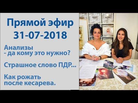 2018 07 31 Диагностика, ПДР, роды после кесарева