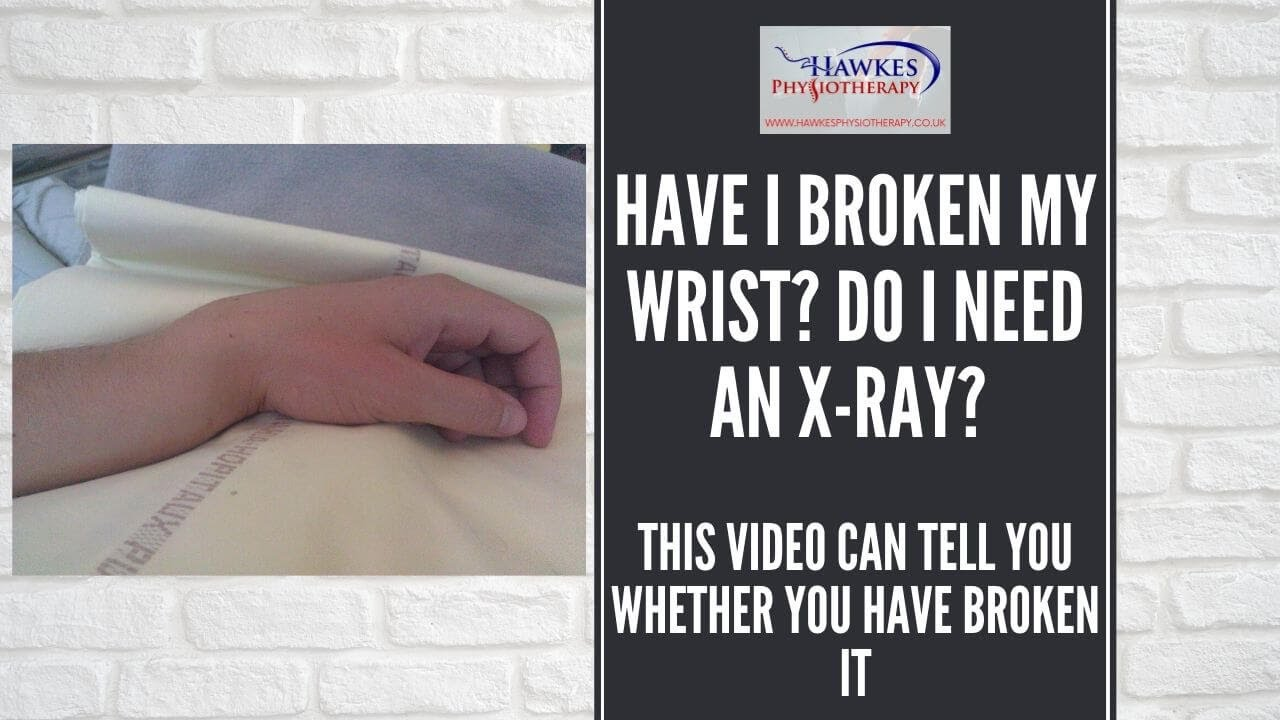 Have I Broken My Wrist Do I Need An X-Ray This Video Can -6043