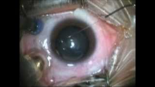 Methods of silicone oil removal after vitrectomy