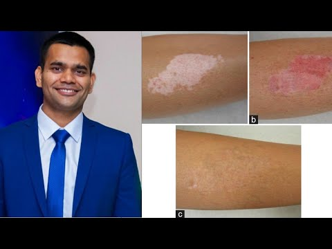 Витилиго- Белые пятна на коже / Народное лечение