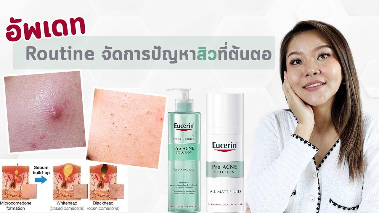(เช็คสูตร) Routine รักษาสิวผิวมัน ลดสิวเกิดซ้ำ จาก Eucerin Pro Acne Solution #ใช้ดีจนต้องรีวิวซ้ำ