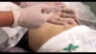 Озонотерапия тела для похудения