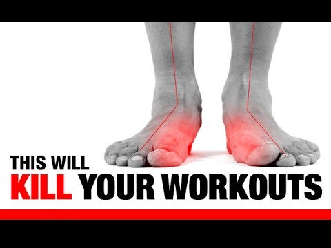 Amazing 5 Ways Flat Feet U201cFu201d Up Your Workouts!! (EXERCISES TO FIX THEM!) Pictures Gallery