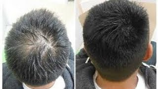Hair Regrowth for Men Naturally With ArganRain Products