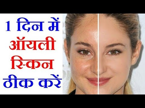 DIY//Super easy and effective face Mask for Oily Skin// Super Glam Style//