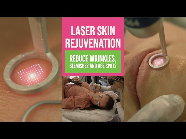Reduce Wrinkles, Blemishes and Age Spots with Laser | Body Details