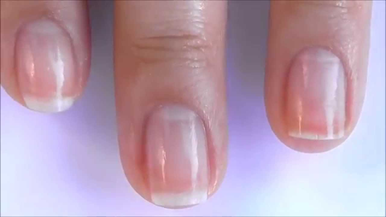 How To Get Healthy Cuticles And Nails | Best Nail Designs 2018