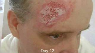 time lapse video and pictures of basal cell carcinoma removal skin cancer treatment no surgery