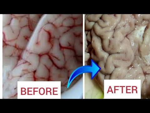 How to remove veins and clean brain easily