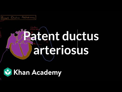 Patent ductus arteriosus | Circulatory System and Disease | NCLEX-RN | Khan Academy