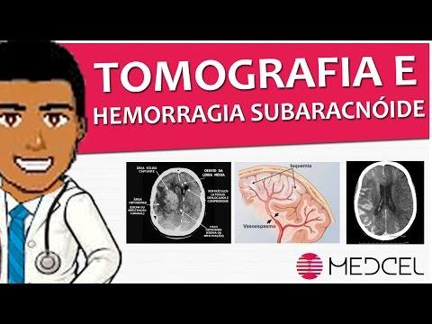 Radiologia - Tomografia De Crânio E Achados Da Hemorragia Subaracnoide + Sorteio (MEDCEL)