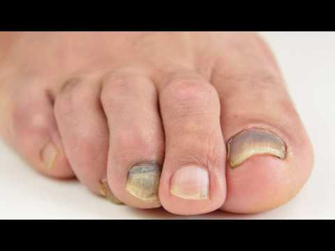 Santa Barbara Podiatrist (foot doctor) talks about Discolore