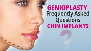 Genioplasty Frequently Asked Questions Chin Implants Thumbnail