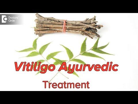 How Can We Treat Vitiligo(white Patches)through Ayurveda? - Dr. Mini Nair