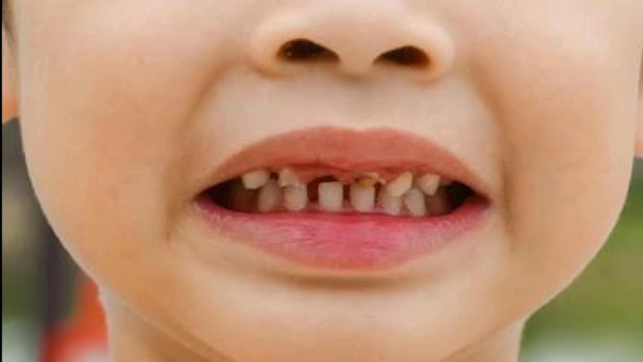Cara Menghilangkan Karies Gigi Pada Anak - Menghilangkan ...