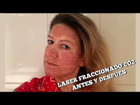 Laser fraccionado CO2 acne, manchas y rejuvenecimiento - 1 experiencia
