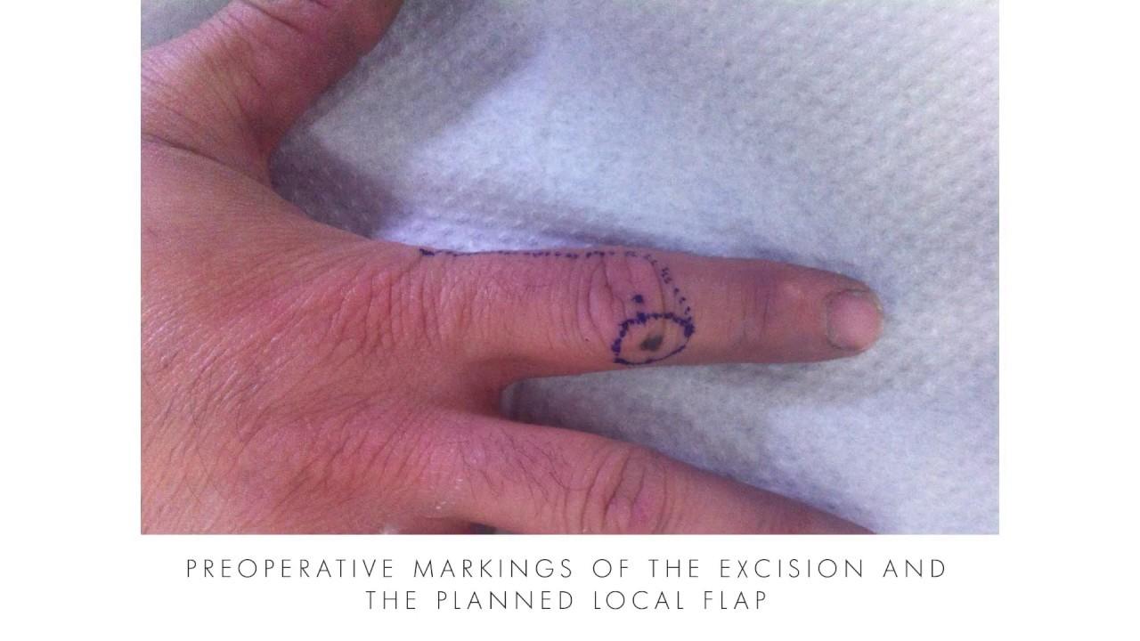 Malignant Melanoma Excision Finger - Rhodes Greece - YouTube