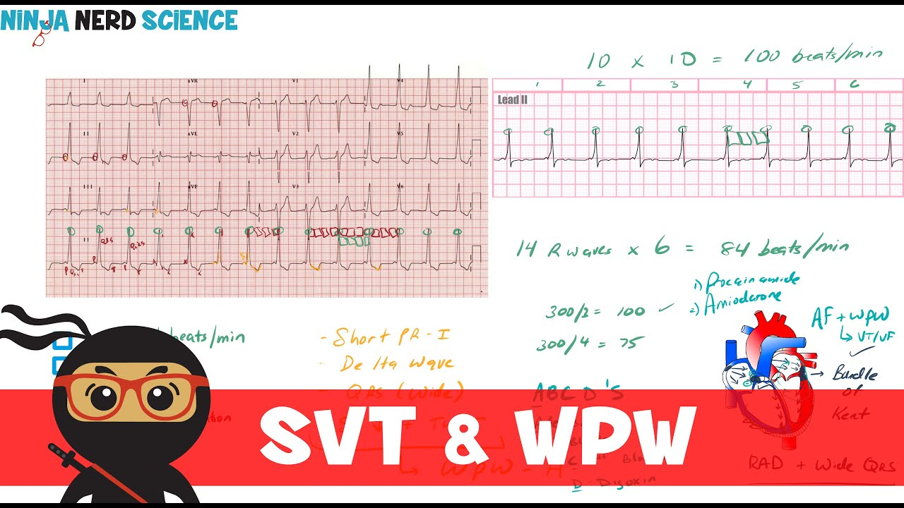 Rate And Rhythm Supraventricular Tachycardia Svt And Wolff Parkinson White Wpw Syndrome Youtube