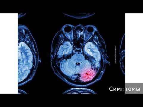 Токсическая энцефалопатия. Как лечить токсическую энцефалопатию.