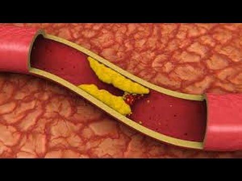 высокий холестерол причины