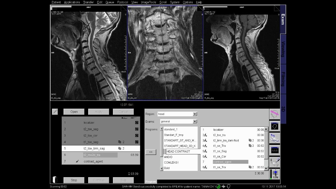 C spine MRI positioning +contrast enchanc