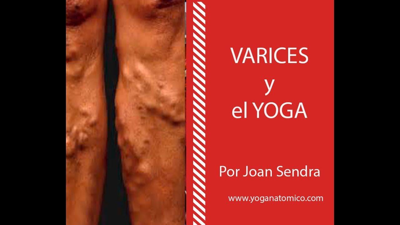 yoga cu tratament vene varicoase