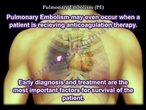 Pulmonary #Embolism in Lower Limb Surgery