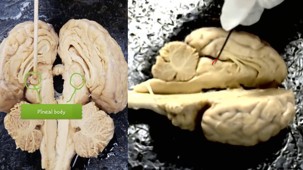 anatomy of the sheep brain video for anatomy class - practice for ...