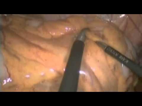 Retopexia videolaparoscópica para o tratamento cirúrgico da providência do reto