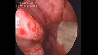 Endoscopic management of Posterior epistaxis
