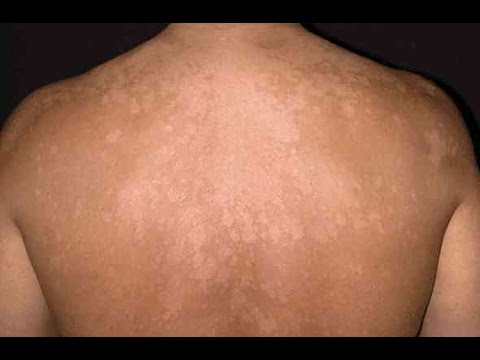 lower back rashes #10
