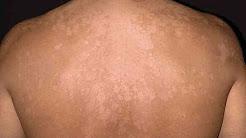 A Spotty Rash: Tinea Versicolor [DermTV.com Epi #560]