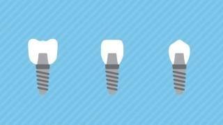 Имплантация зубов в СПб (Санкт-Петербург)(, 2017-06-26T10:02:12.000Z)