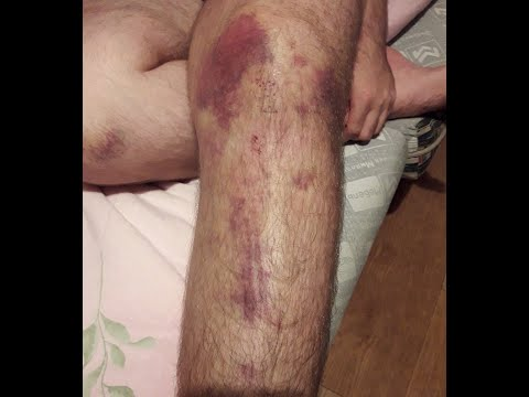 рубрика спортивная травма разрыв боковой связки коленного сустава