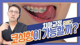 EP.84 코수술 하고 싶은데... 치아교정기를 떼고 …