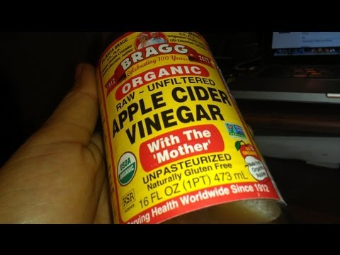 How To Get Rid DISSOLVE Kidney Stones Free and Naturally Treat Dissolve #ACV #health