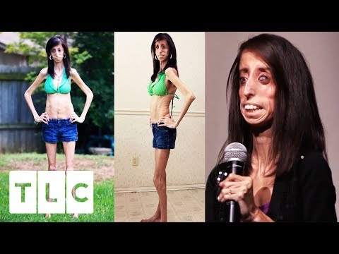 Body Bizarre | The World's Thinnest Woman
