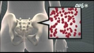 VTC14_Mỹ thử nghiệm loại thuốc chữa ung thư máu mới
