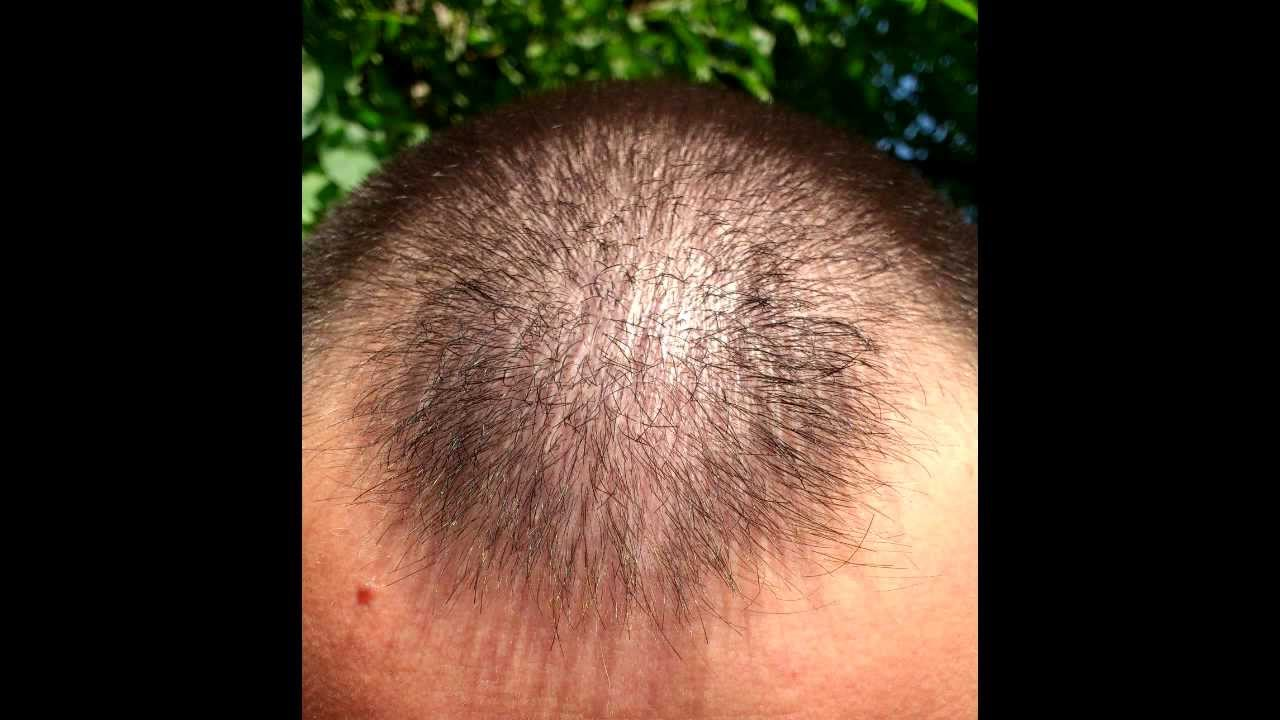 Minoxidil Hair Regrowth Results Before And After 9 Months With Lots