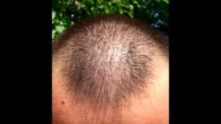 Minoxidil hair regrowth results before and after 9 months, with lots of pictures 2013