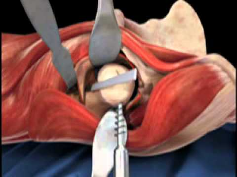 Femoral Head Osteotomy Animation Direct Anterior Total