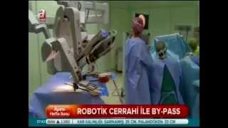 Robotik Cerrahi İle By- Pass