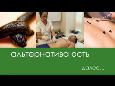 Гирудотерапия - лечение пиявками. Показания и
