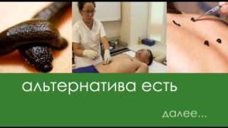 Лечение пиявками | Польза гирудотерапии | Сеанс в клинике «Тибет»